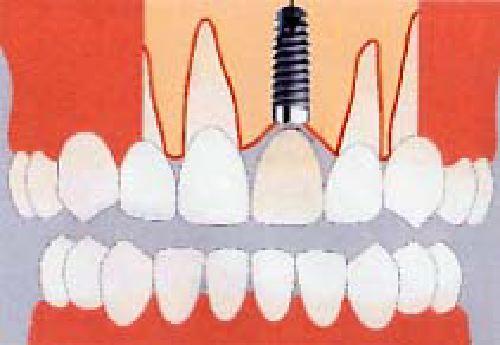 inplant2.jpg